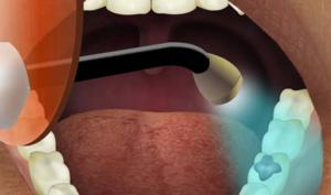دستگاه پر کردن دندان