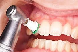 خریدار دستگاه جرم گیری دندان