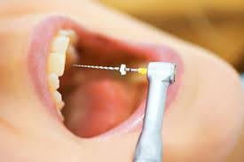 دستگاه پرکردن دندان بدون بی حسی