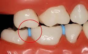 دستگاه جرم گیری دندان سریع wp-100