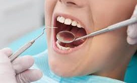 تولید عمده آینه های دندانپزشکی خارجی