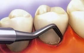 دستگاه جرم گیری دندان