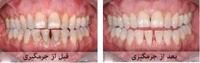 عرضه عمده دستگاه جرم گیری دندان