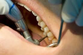 عرضه اینترنتی دستگاه پر کردن دندان