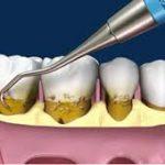 خریدار عمده دستگاه جرم گیری دندان