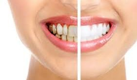 دستگاه پرکردن فواصل دندان