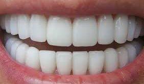 قیمت ابزار پرکردن شیار دندان