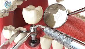 فروش آینه دندانپزشکی