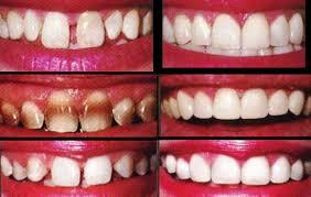 خرید آنلاین ابزار پرکردن دندان نیش